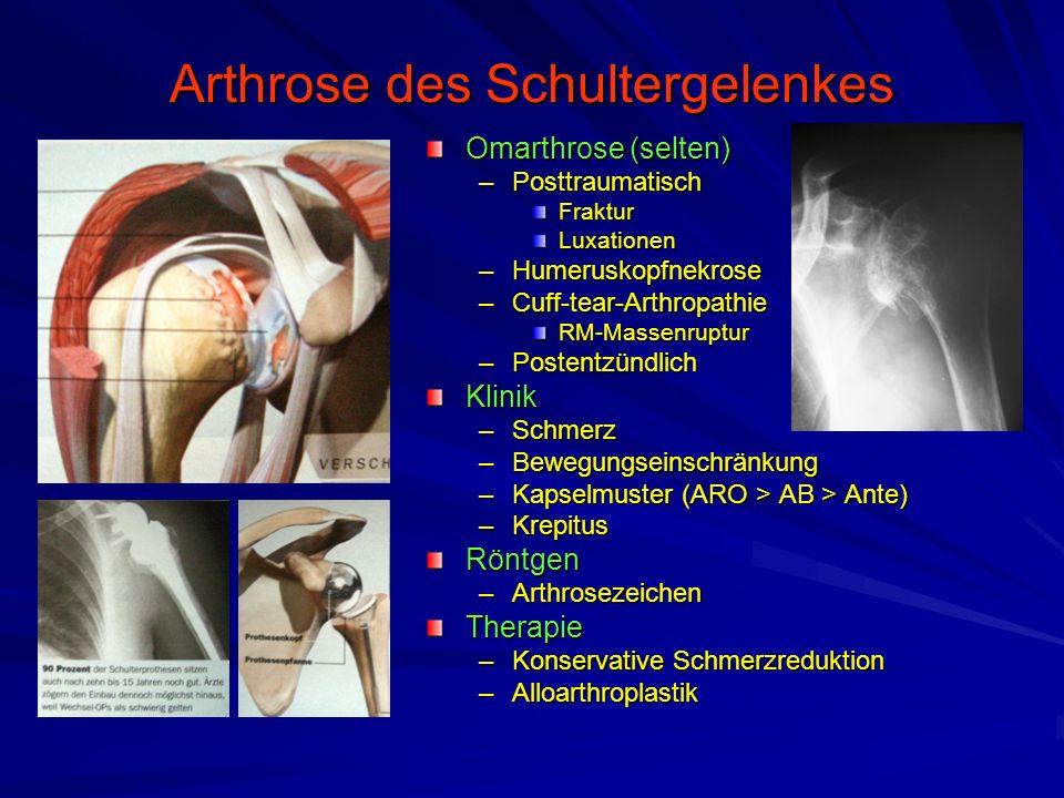 Arthrose des Schultergelenkes