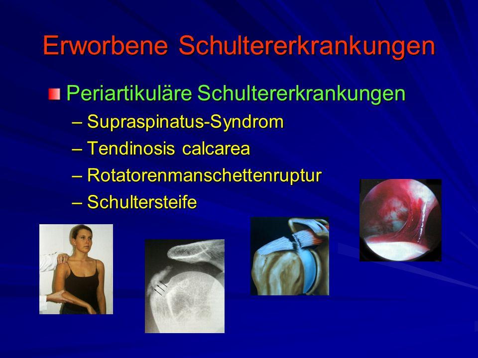 Erworbene Schultererkrankungen