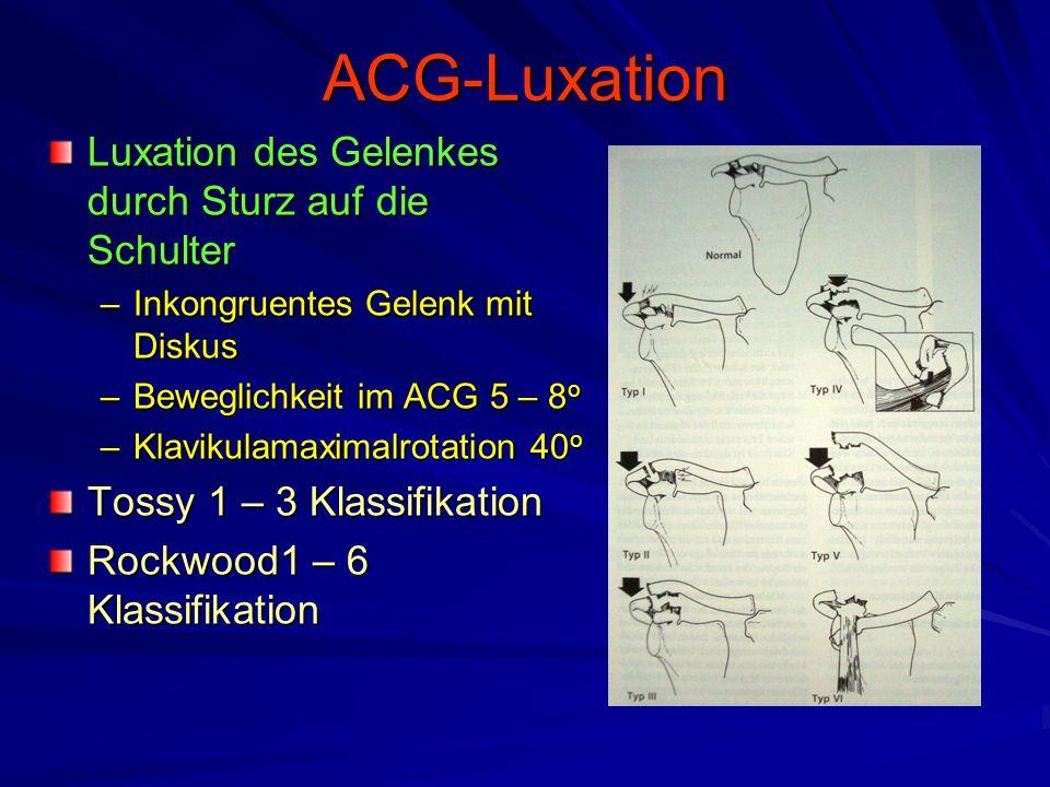 ACG-Luxation Luxation des Gelenkes durch Sturz auf die Schulter