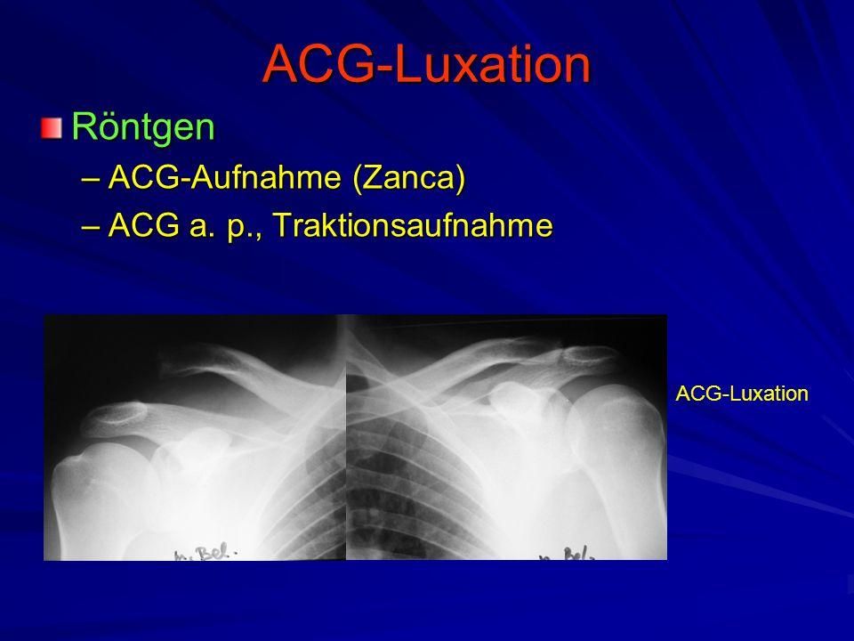 ACG-Luxation Röntgen ACG-Aufnahme (Zanca) ACG a. p., Traktionsaufnahme