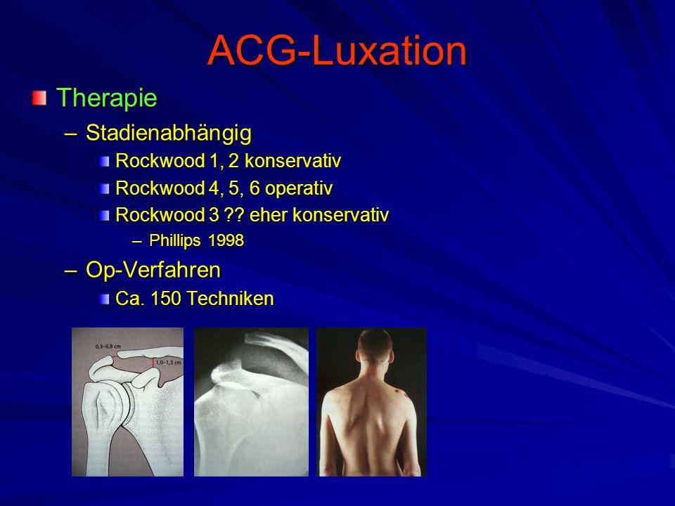ACG-Luxation Therapie Stadienabhängig Op-Verfahren