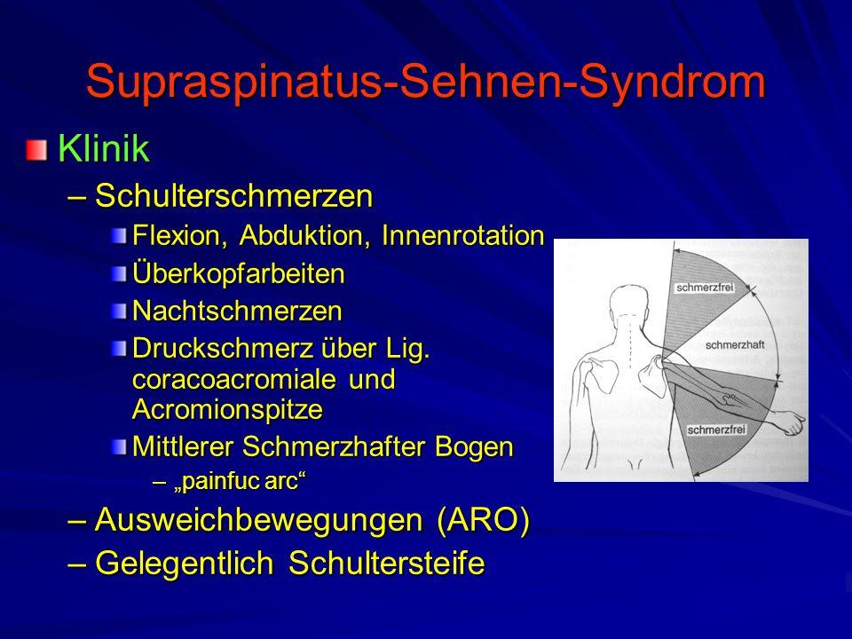 Supraspinatus-Sehnen-Syndrom