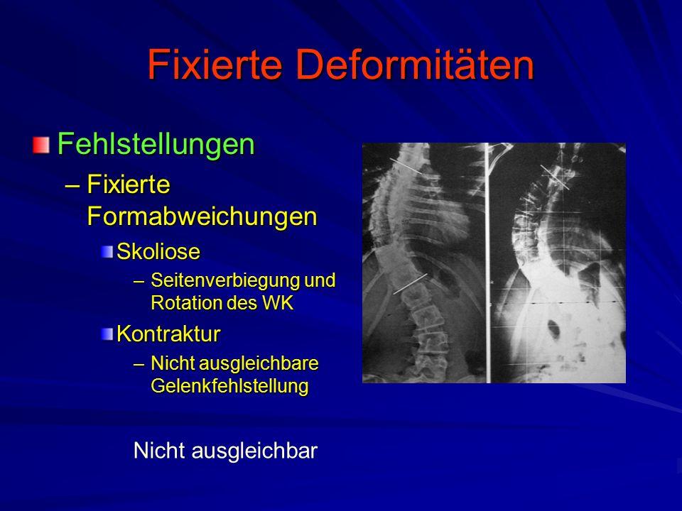 Fixierte Deformitäten
