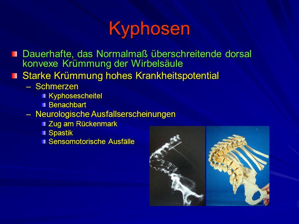 Kyphosen Dauerhafte, das Normalmaß überschreitende dorsal konvexe Krümmung der Wirbelsäule. Starke Krümmung hohes Krankheitspotential.