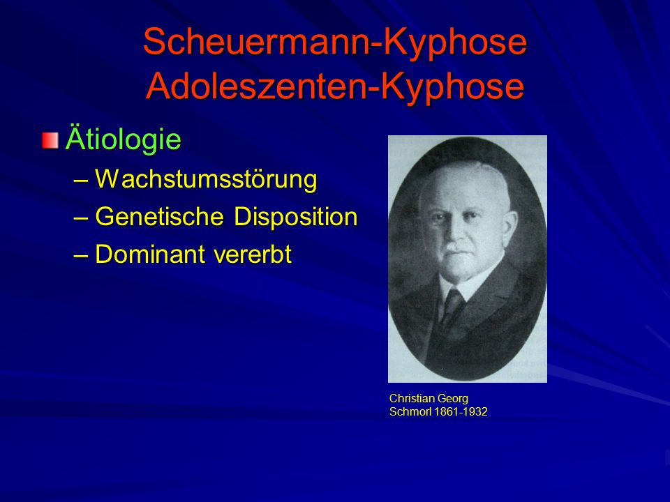 Scheuermann-Kyphose Adoleszenten-Kyphose