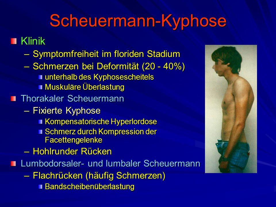 Scheuermann-Kyphose Klinik Symptomfreiheit im floriden Stadium