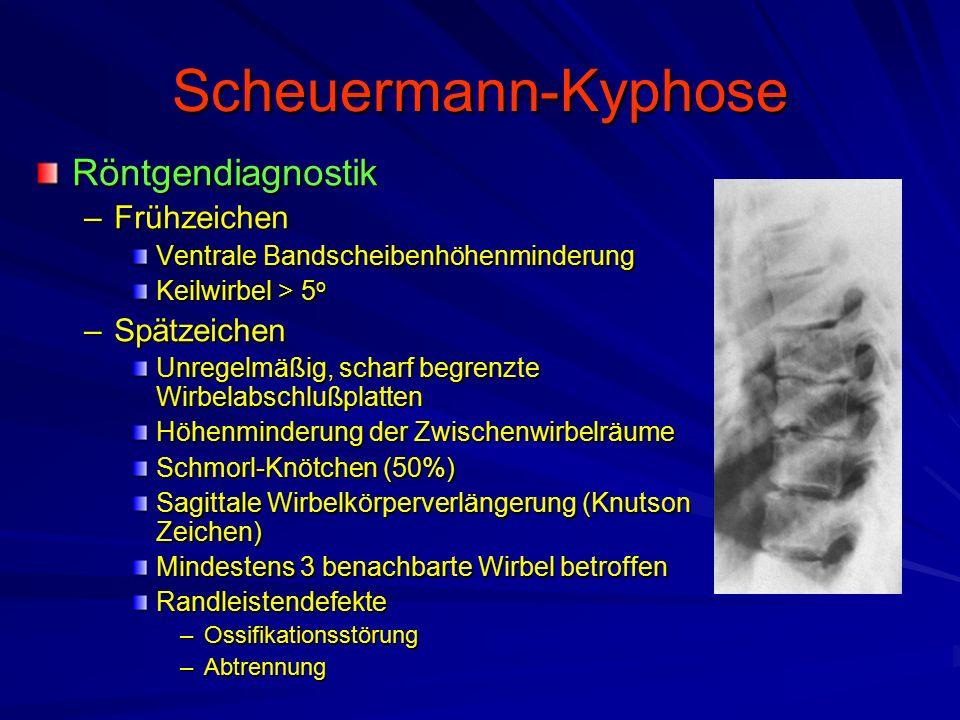 Scheuermann-Kyphose Röntgendiagnostik Frühzeichen Spätzeichen