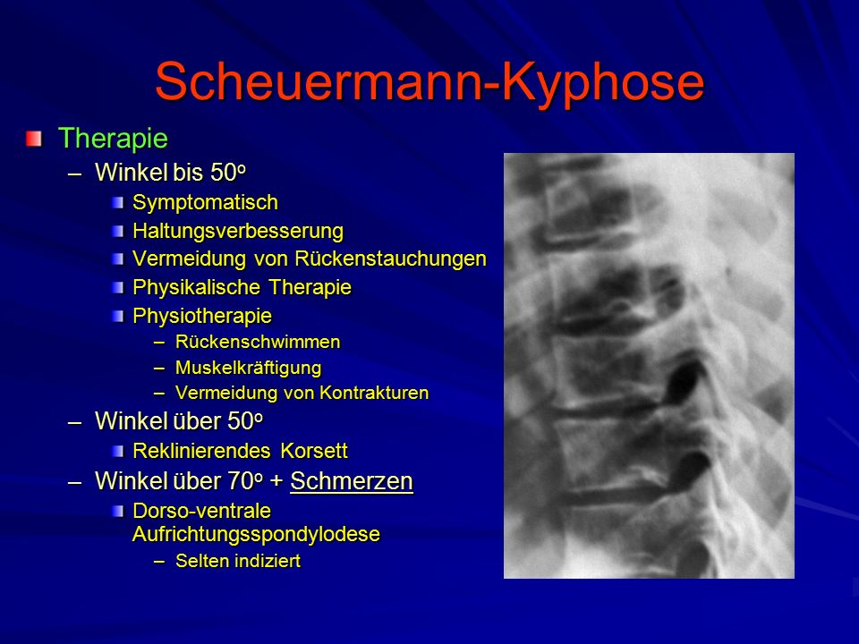 Scheuermann-Kyphose Therapie Winkel bis 50o Winkel über 50o