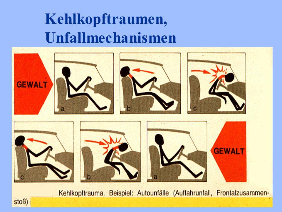 Kehlkopftraumen, Unfallmechanismen