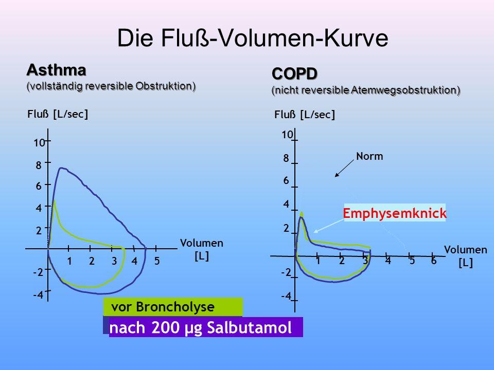 Die Fluß-Volumen-Kurve