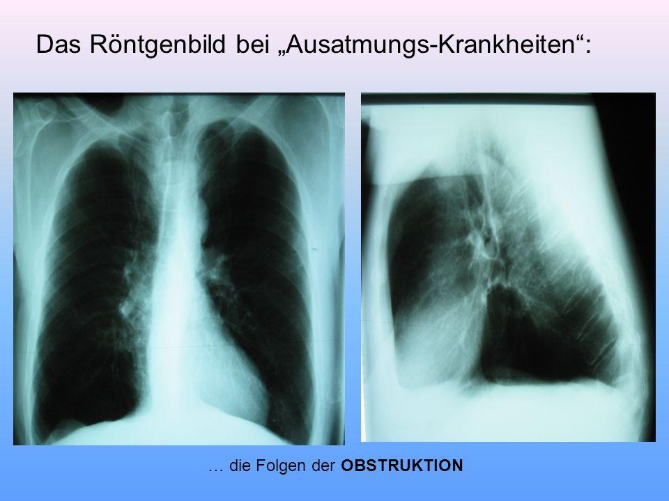 "Das Röntgenbild bei ""Ausatmungs-Krankheiten :"