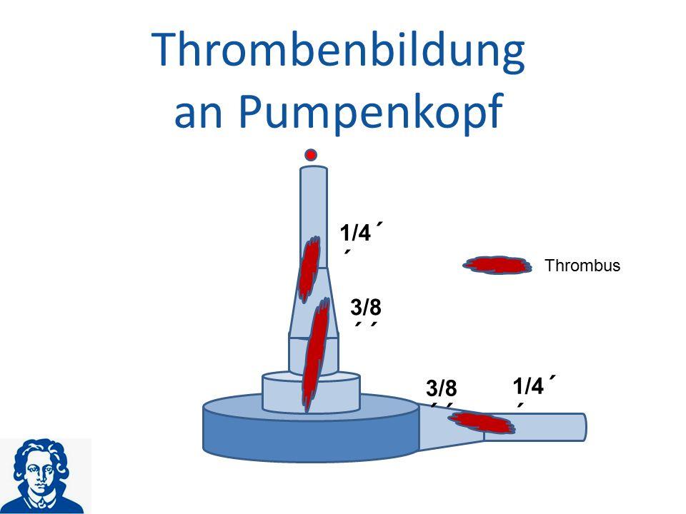 Thrombenbildung an Pumpenkopf