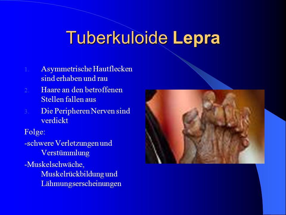 Tuberkuloide Lepra Asymmetrische Hautflecken sind erhaben und rau