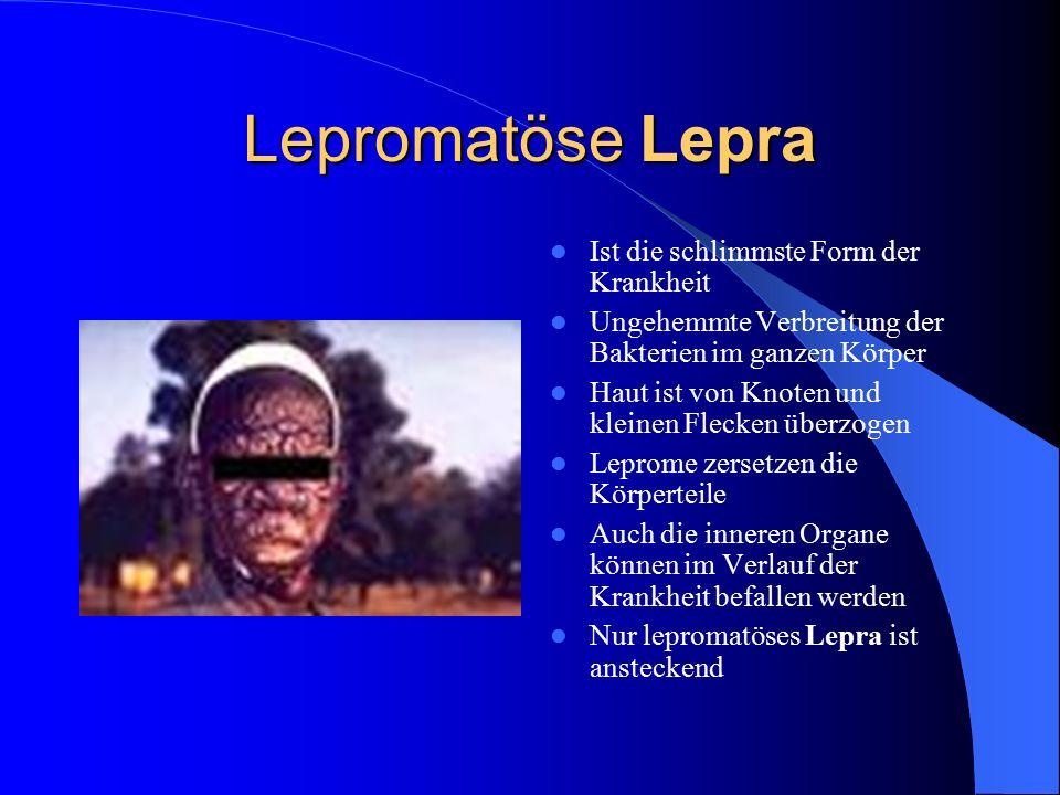 Lepromatöse Lepra Ist die schlimmste Form der Krankheit