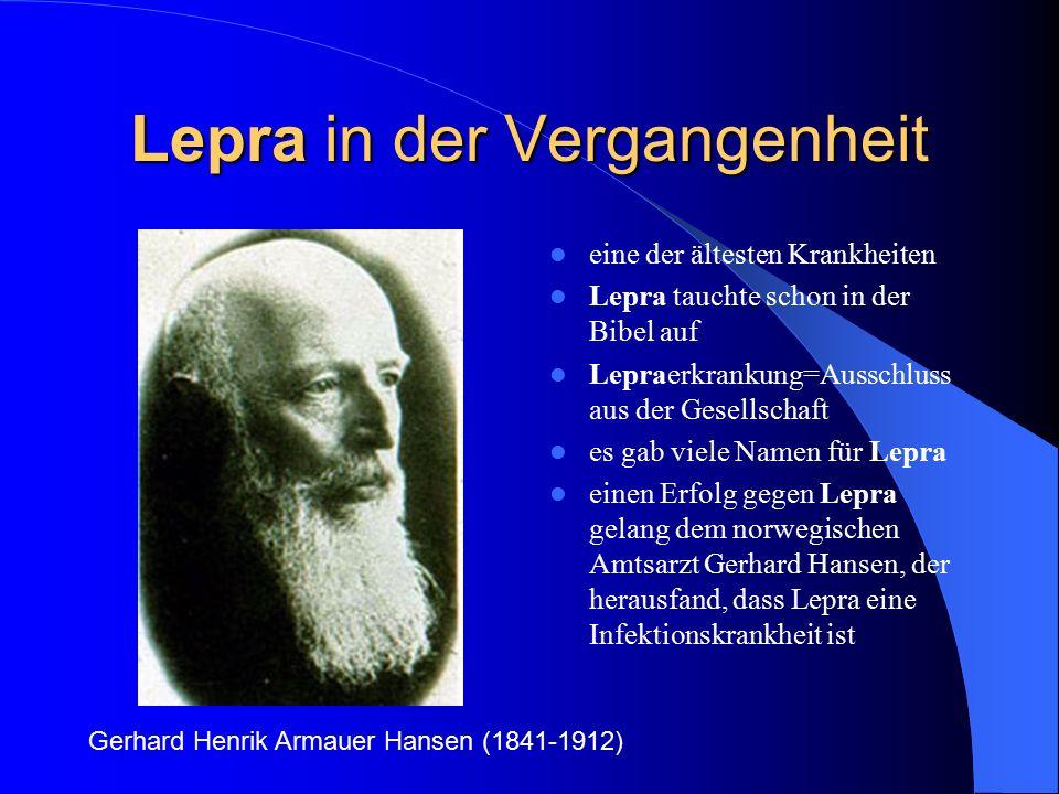 Lepra in der Vergangenheit