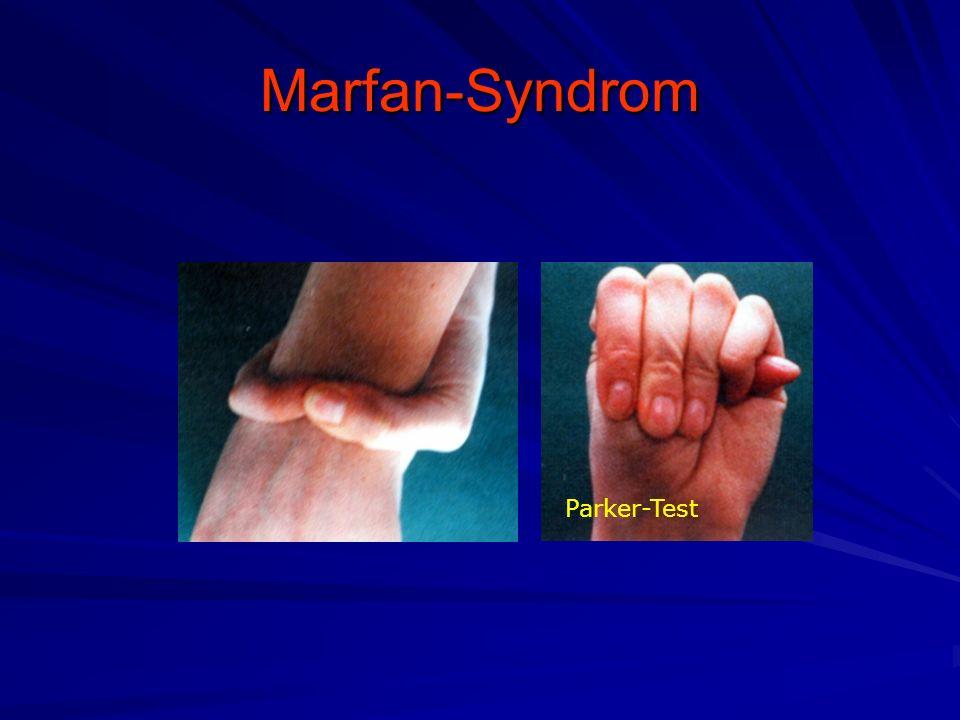 Marfan-Syndrom Parker-Test