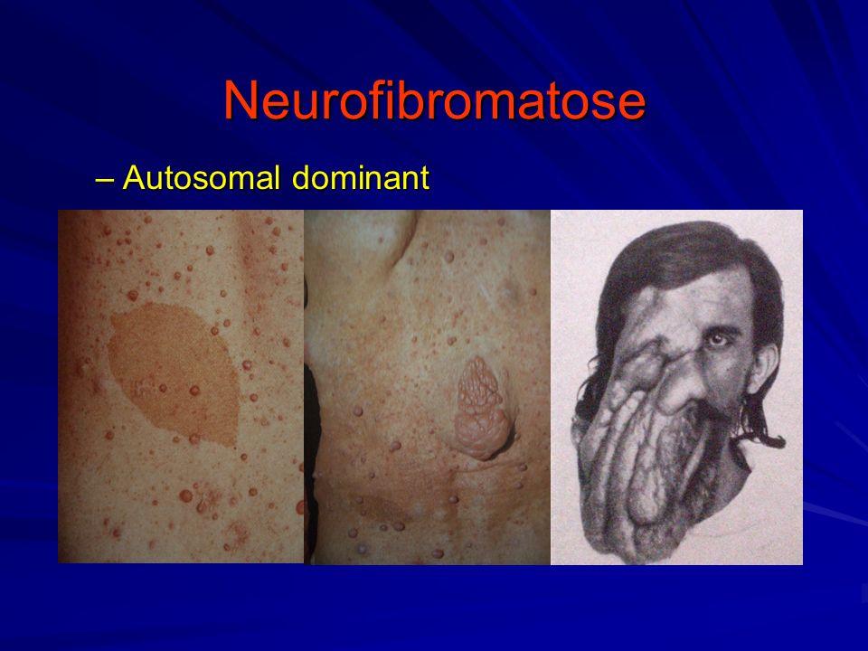 Neurofibromatose Autosomal dominant