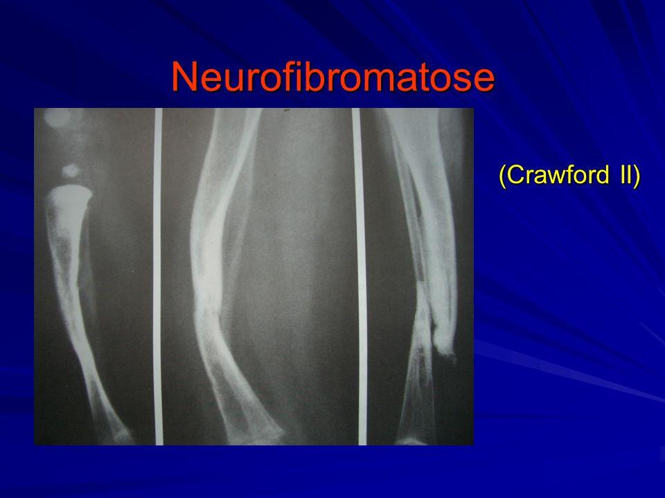 Neurofibromatose (Crawford II)
