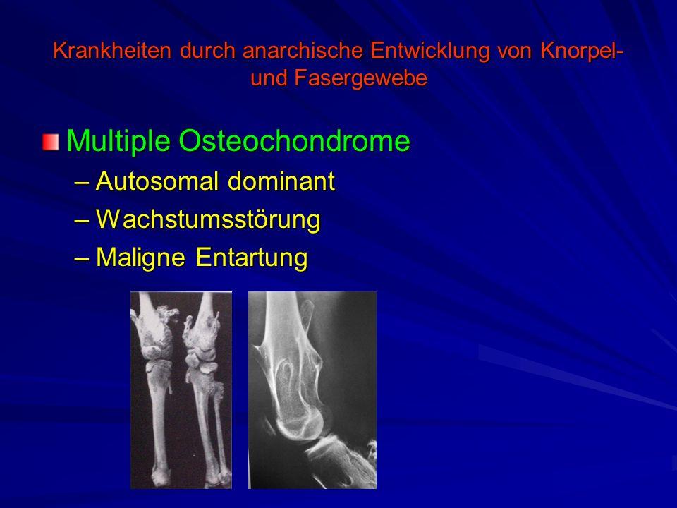 Krankheiten durch anarchische Entwicklung von Knorpel- und Fasergewebe