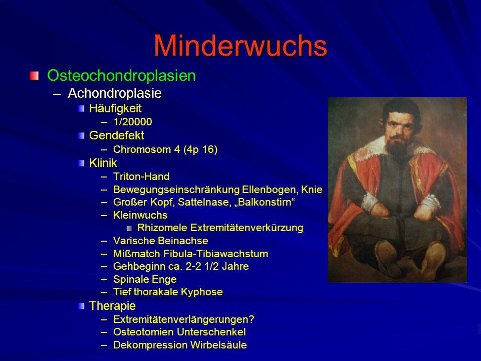 Minderwuchs Osteochondroplasien Achondroplasie Häufigkeit Gendefekt