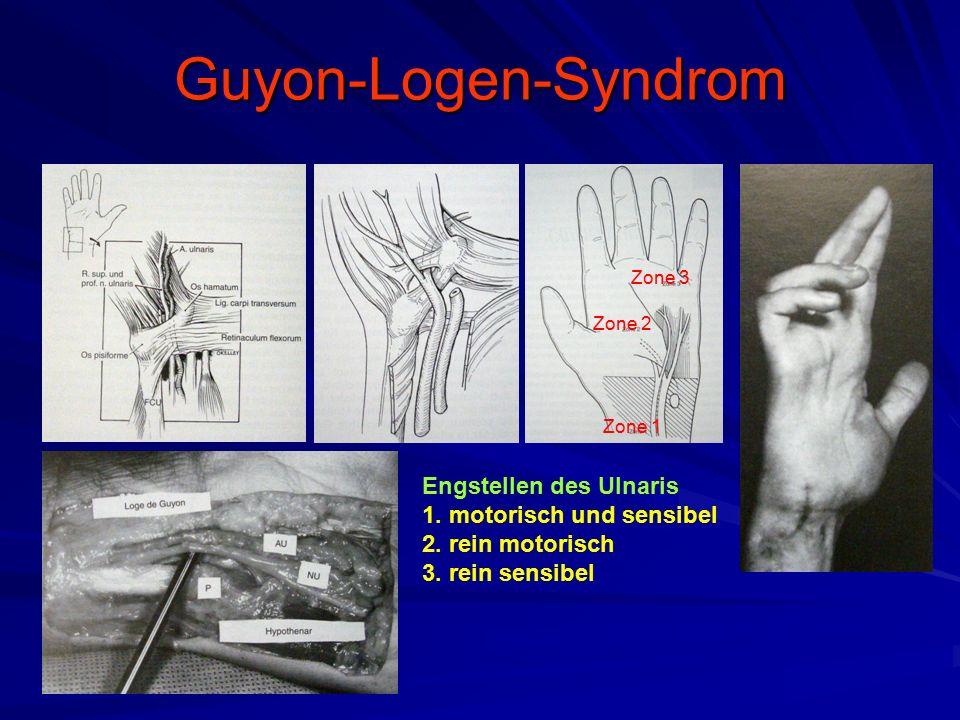 Guyon-Logen-Syndrom Engstellen des Ulnaris 1. motorisch und sensibel
