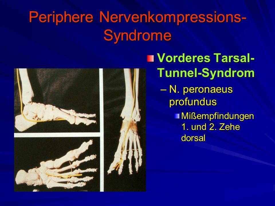 Periphere Nervenkompressions-Syndrome