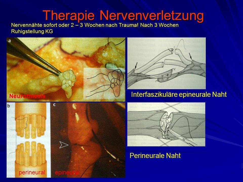 Therapie Nervenverletzung
