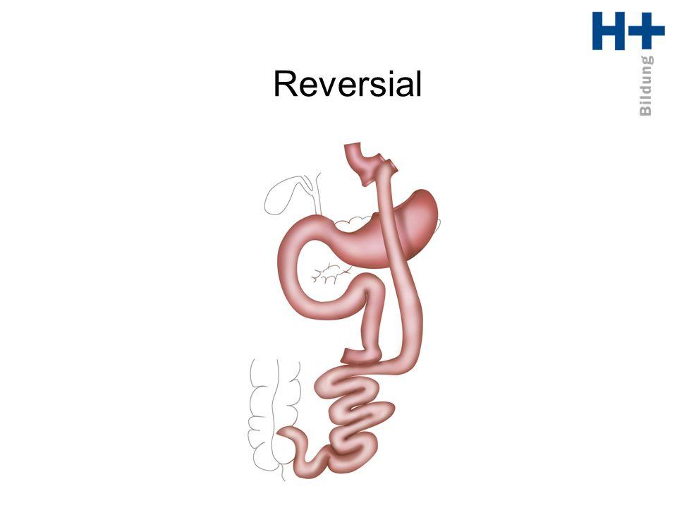 Reversial