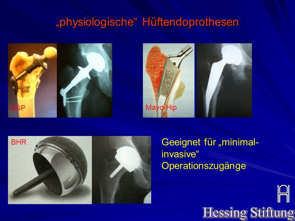 """""""physiologische Hüftendoprothesen"""