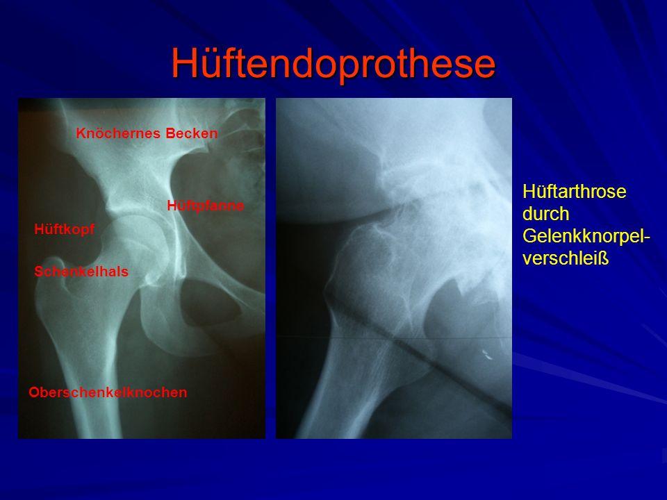 Hüftendoprothese Hüftarthrose durch Gelenkknorpel-verschleiß