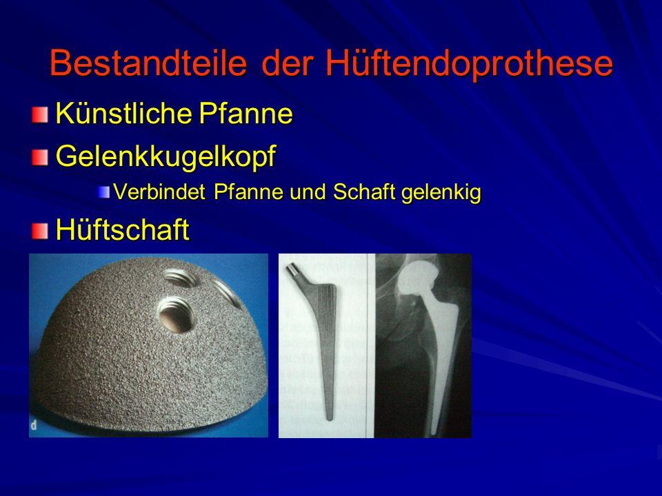 Bestandteile der Hüftendoprothese