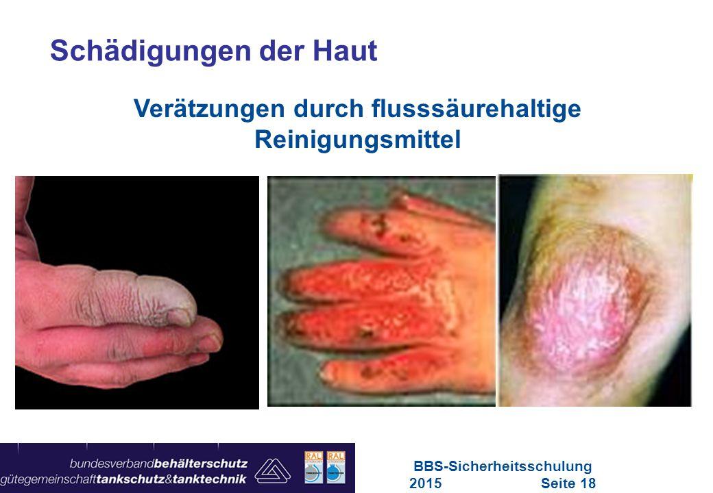 Schädigungen der Haut Verätzungen durch flusssäurehaltige Reinigungsmittel.