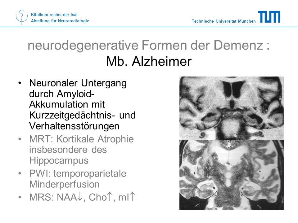 neurodegenerative Formen der Demenz : Mb. Alzheimer