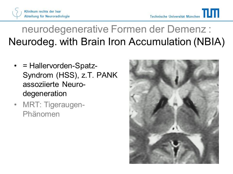 neurodegenerative Formen der Demenz : Neurodeg