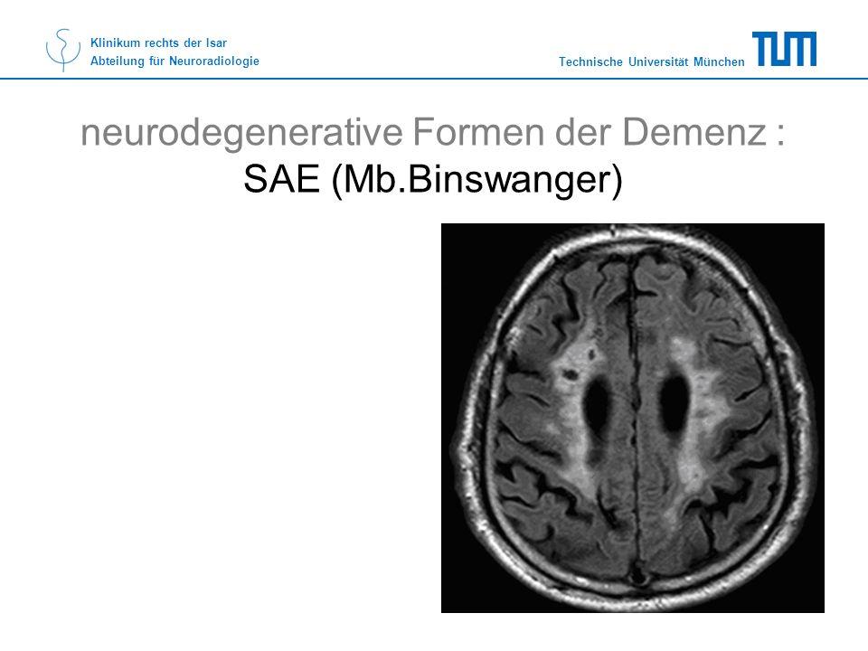neurodegenerative Formen der Demenz : SAE (Mb.Binswanger)