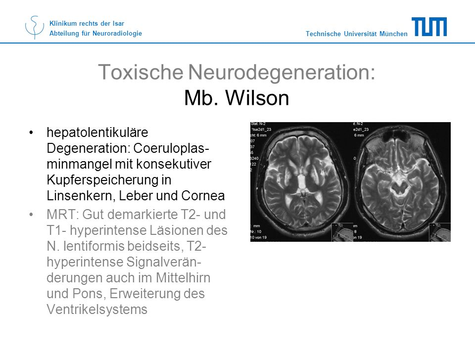 Toxische Neurodegeneration: Mb. Wilson