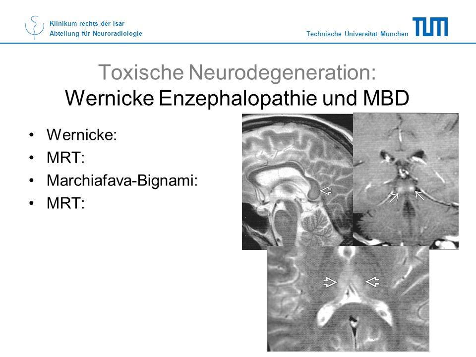 Toxische Neurodegeneration: Wernicke Enzephalopathie und MBD