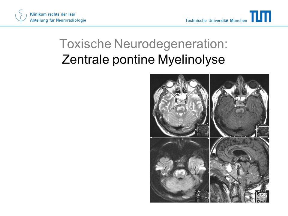 Toxische Neurodegeneration: Zentrale pontine Myelinolyse