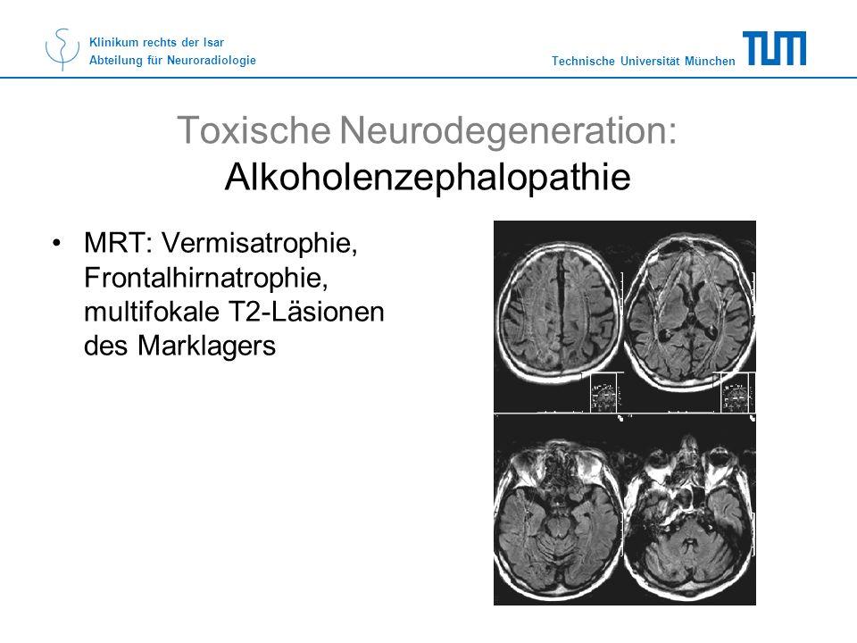 Toxische Neurodegeneration: Alkoholenzephalopathie