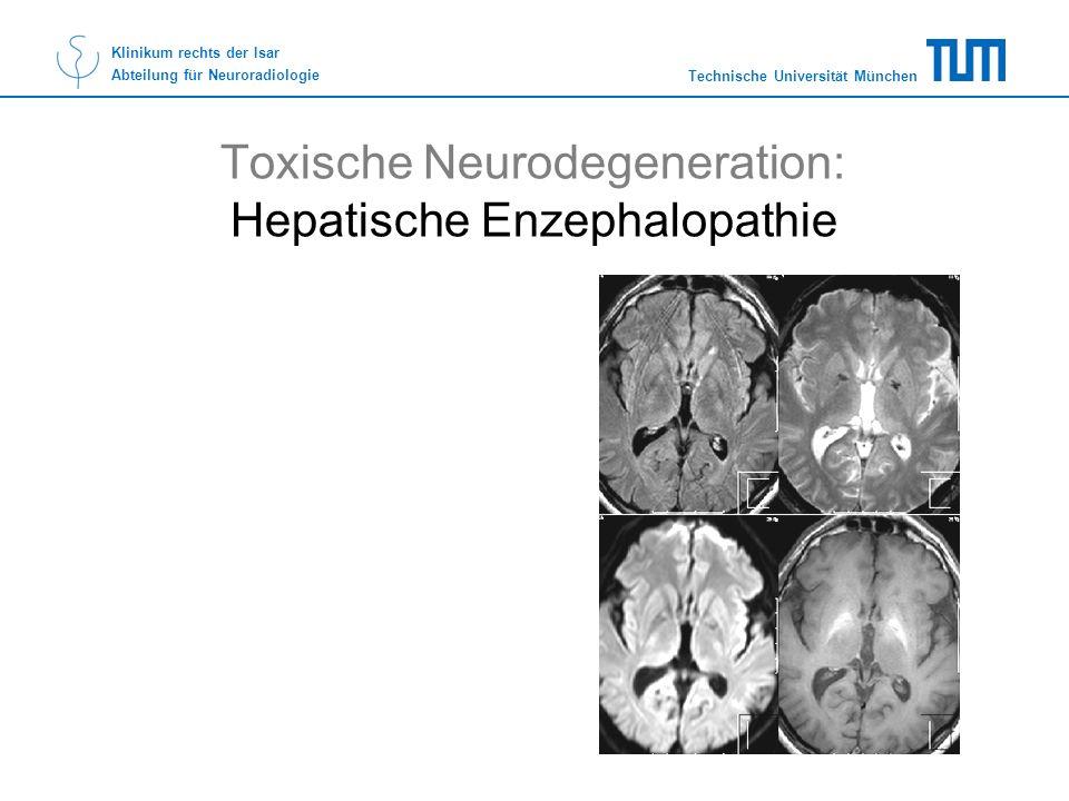 Toxische Neurodegeneration: Hepatische Enzephalopathie