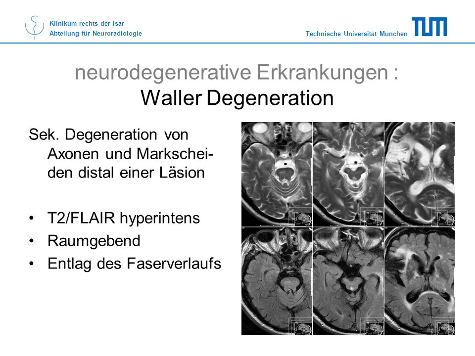 neurodegenerative Erkrankungen : Waller Degeneration