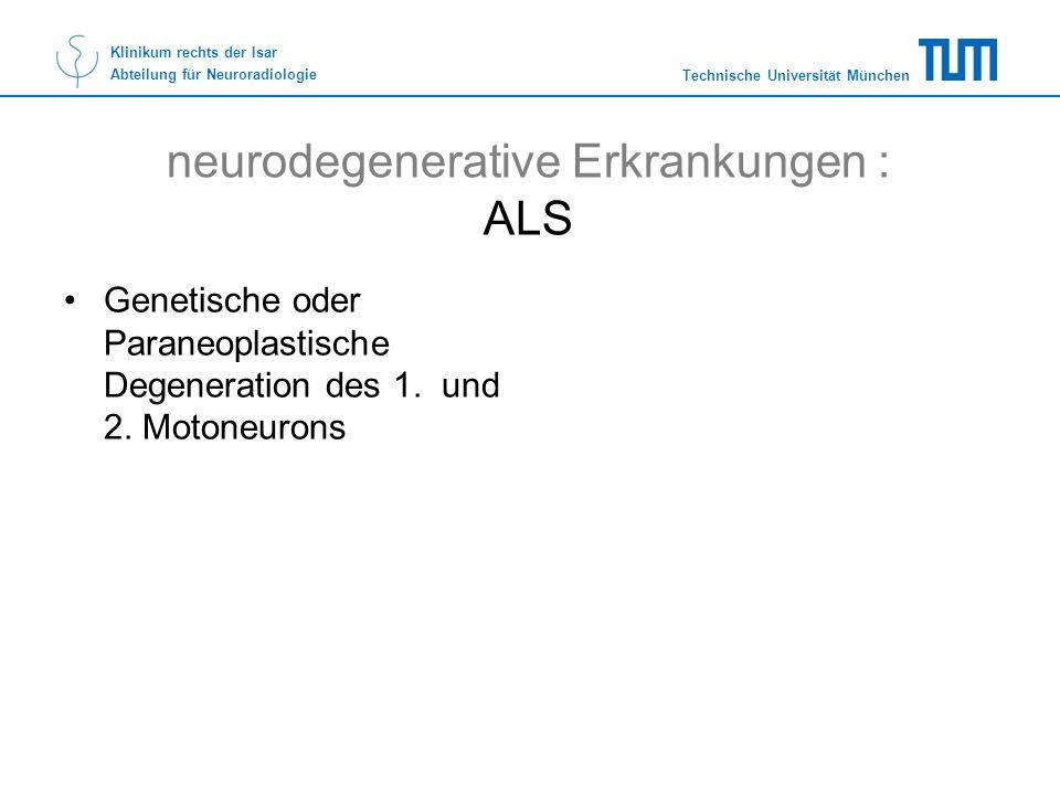 neurodegenerative Erkrankungen : ALS