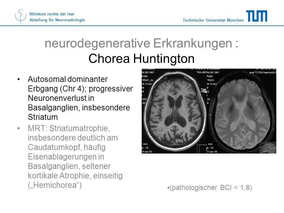 neurodegenerative Erkrankungen : Chorea Huntington