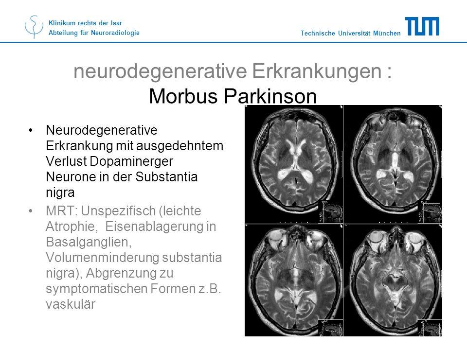 neurodegenerative Erkrankungen : Morbus Parkinson