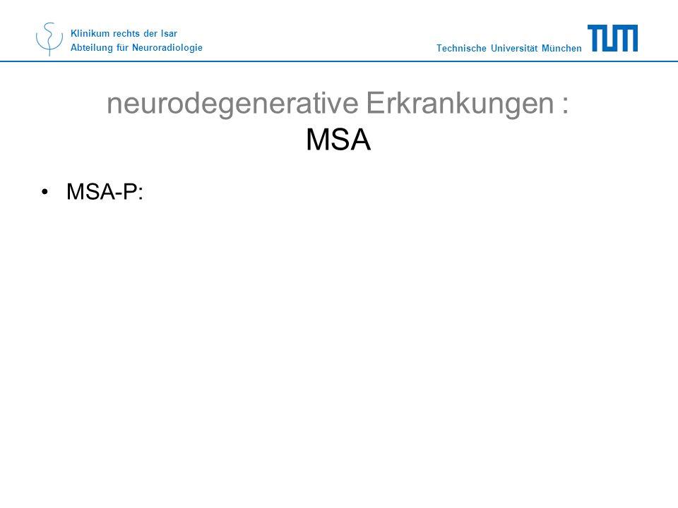 neurodegenerative Erkrankungen : MSA