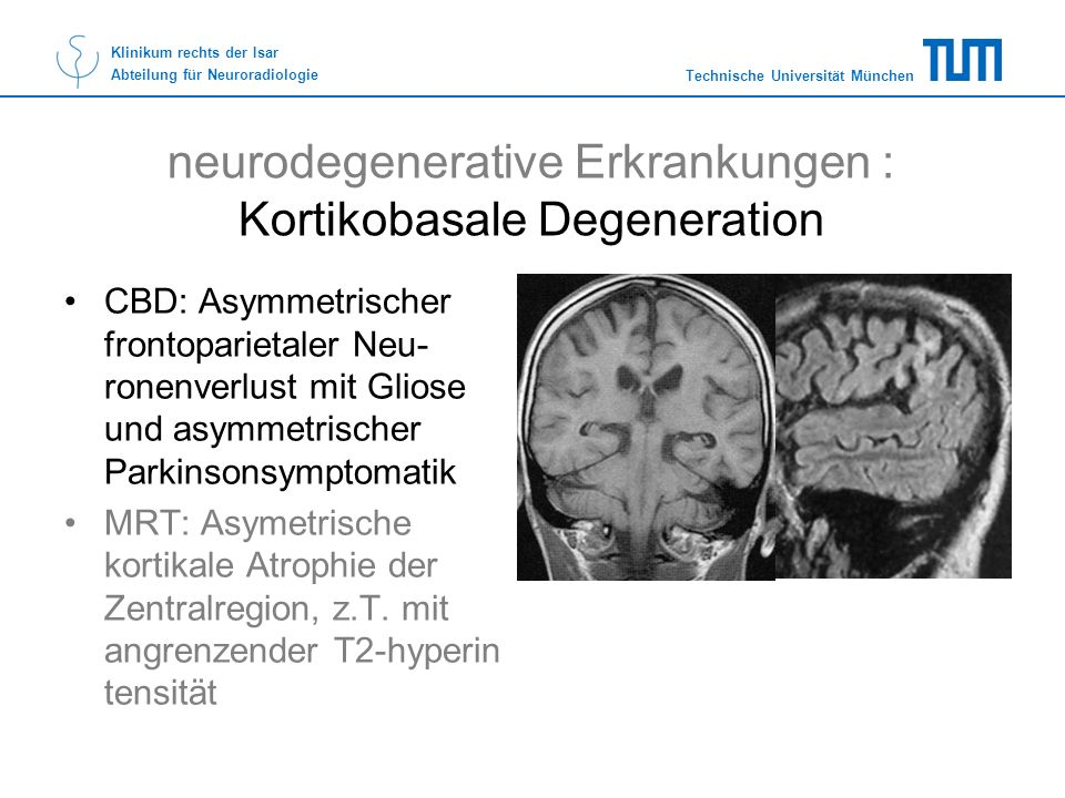neurodegenerative Erkrankungen : Kortikobasale Degeneration