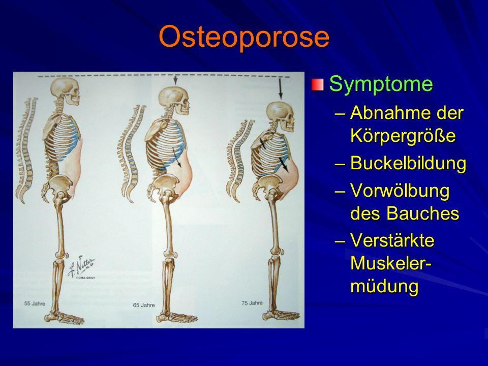 Osteoporose Symptome Abnahme der Körpergröße Buckelbildung
