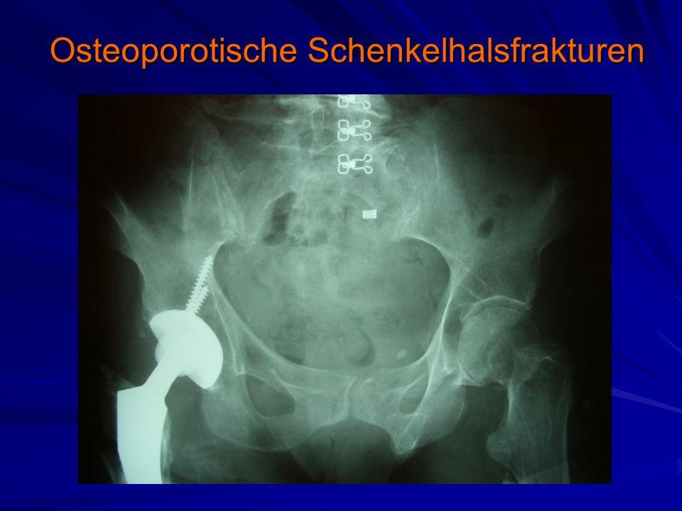 Osteoporotische Schenkelhalsfrakturen