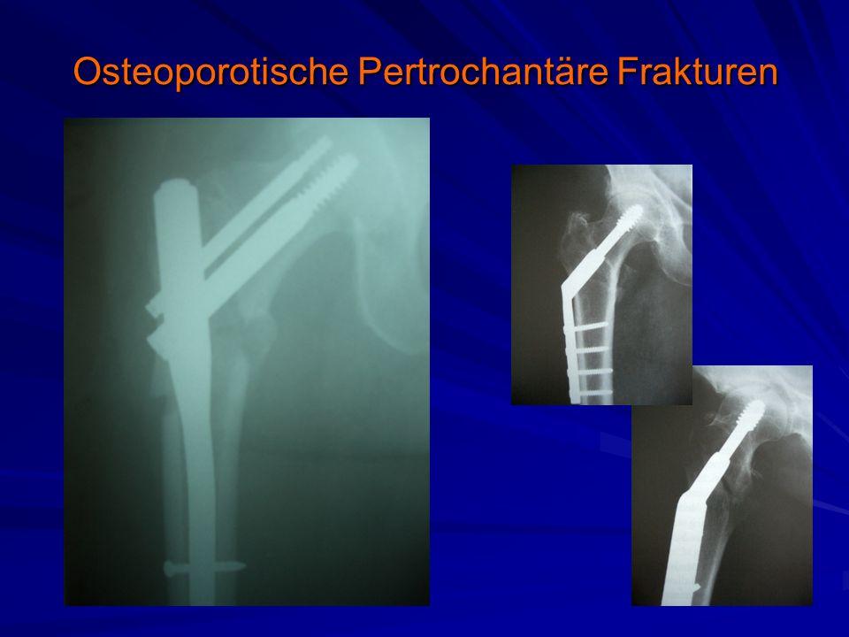 Osteoporotische Pertrochantäre Frakturen