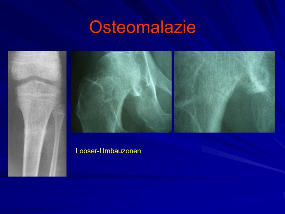 Osteomalazie Looser-Umbauzonen